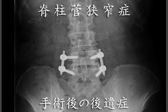 脊柱菅狭窄症やヘルニアの手術後の後遺症を治すには