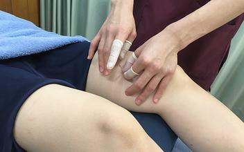 ひざの靭帯損傷や半月板損傷に再生医療を