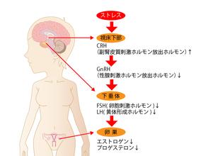 ストレスが女性ホルモンを乱し不妊症へとつながる