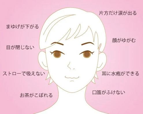 疱疹 頭痛 帯状